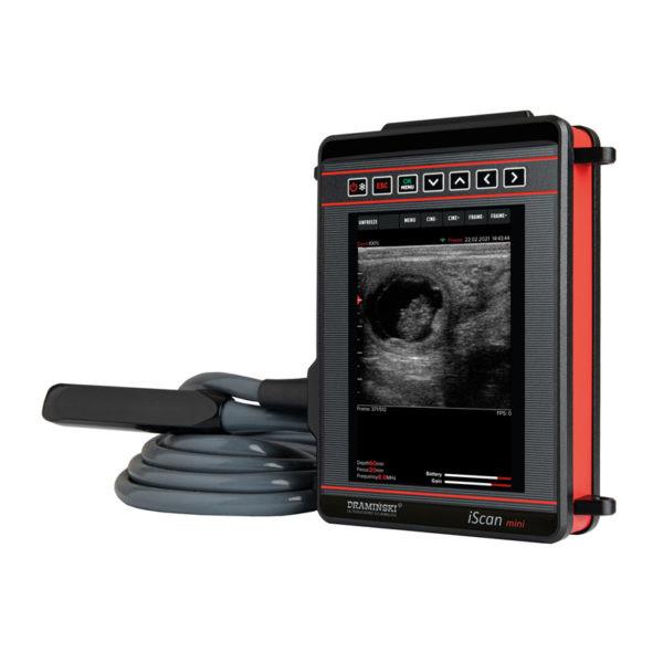 УЗИ сканер iScan mini
